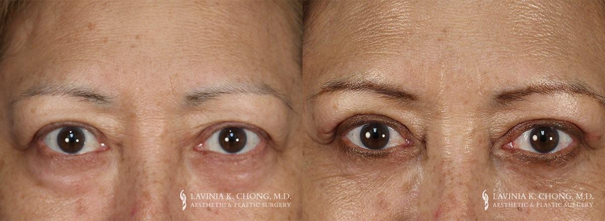 Eyelid Surgery Newport Beach Patient 2