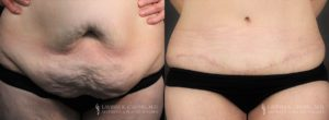 Tummy Tuck Before & After Photo Patient 3 - Front View