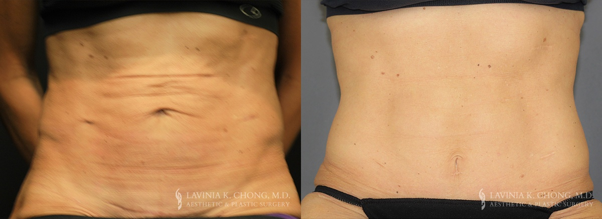 Tummy Tuck Before & After Photo Patient 4 - Front View