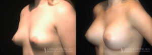 Patient 5.3 Before and After Breast Augmentation