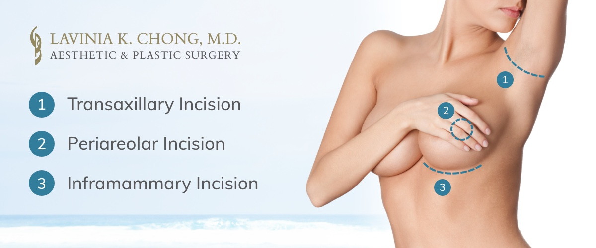 Breast Augmentation incision types